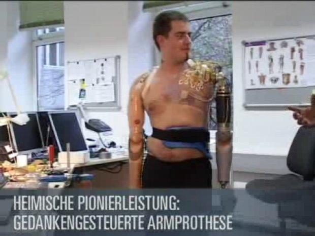 Gedankengesteuerte Armprotese